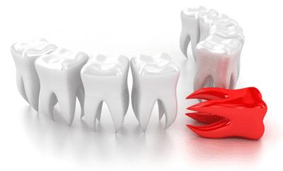 стоматология без боли